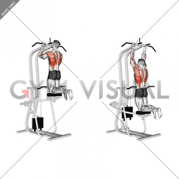 Lever Assisted Chin-Up