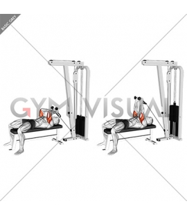 Cable Lying Triceps Extension (with Rope)